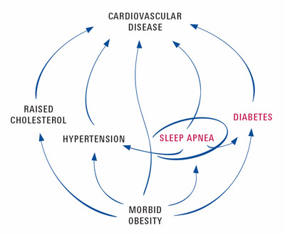 Diabetes and Apnea