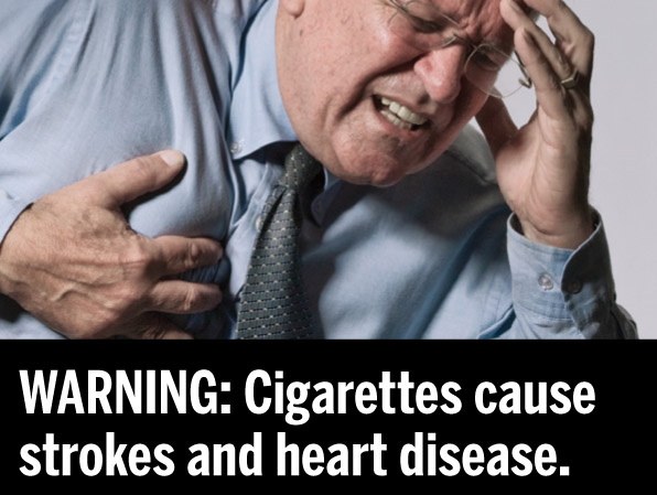 Smoking Causes Heart Disease and Strokes