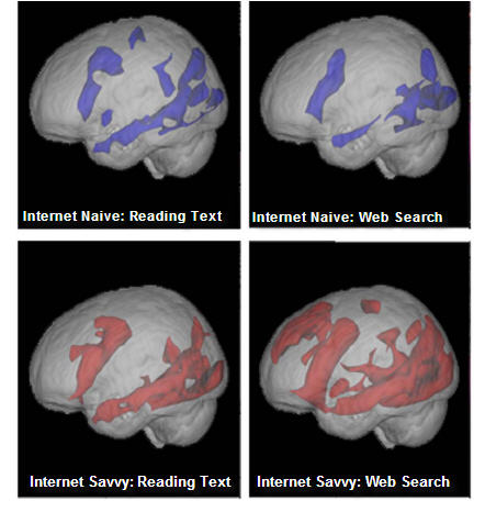 Is Google Rewiring Our Brains?